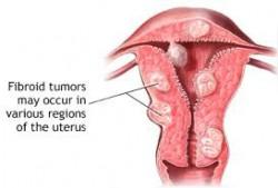fibroid symptoms